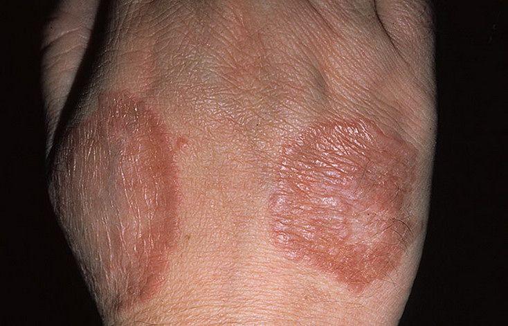 кольцевидный гранулез у ребенка фото