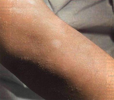 Шелушащаяся кожа на предплечьях