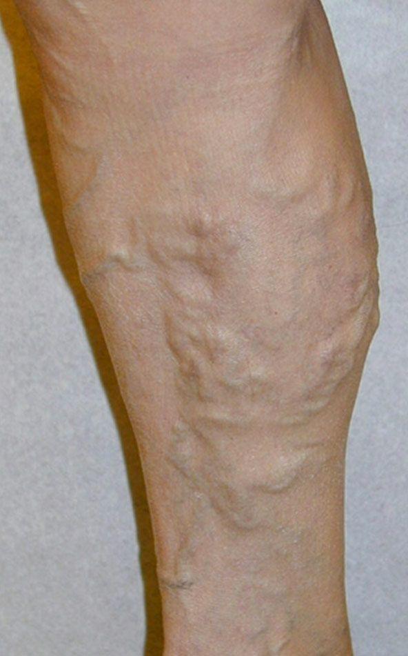 Как выглядят начальная стадия трофические язвы на ногах
