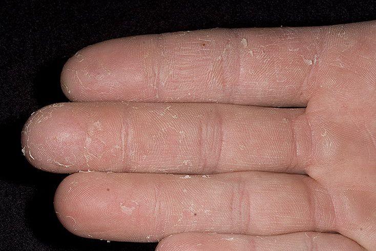 Что такое экзема ногтей фото